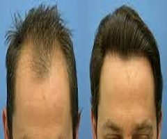 Hair Loss & Growth Treatments and Products Market