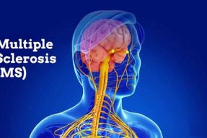 understanding the misunderstood disease of multiple sclerosis