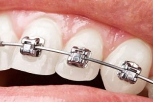 Orthodontics Dental Consumables Market