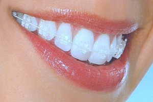 Dental Braces Market