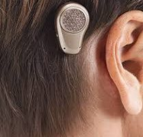 Bone Anchored Hearing Aids (BAHA) Implants Market